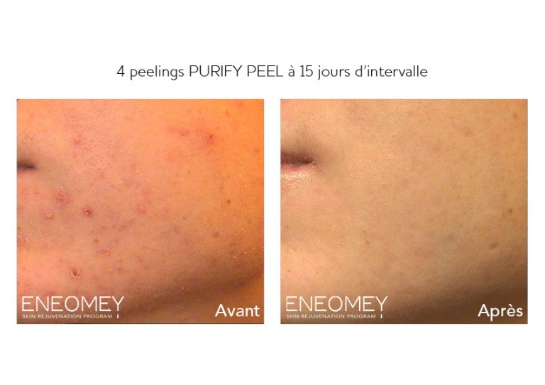 PURIFY PEEL